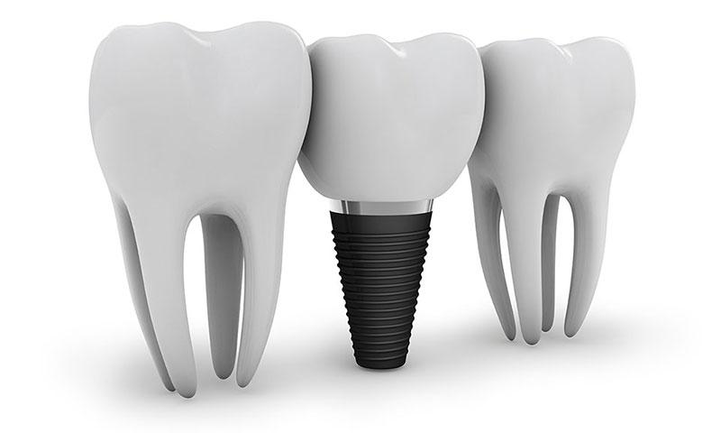 dental implants union city