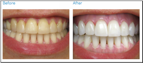 teeth whitening in union city