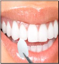 veneers dentist fremont