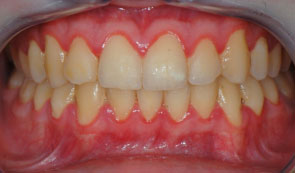 before a dental cleaning