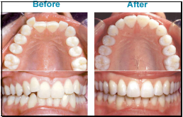invisalign union city